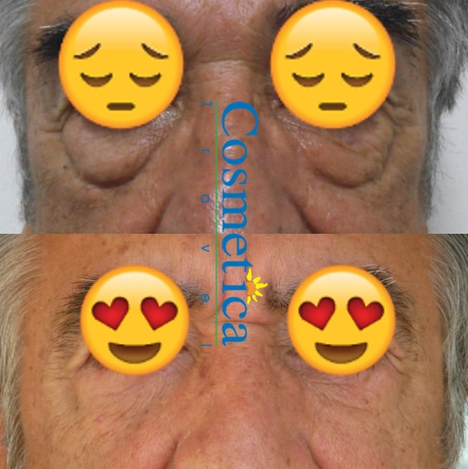 blepharoplastie homme avant apres