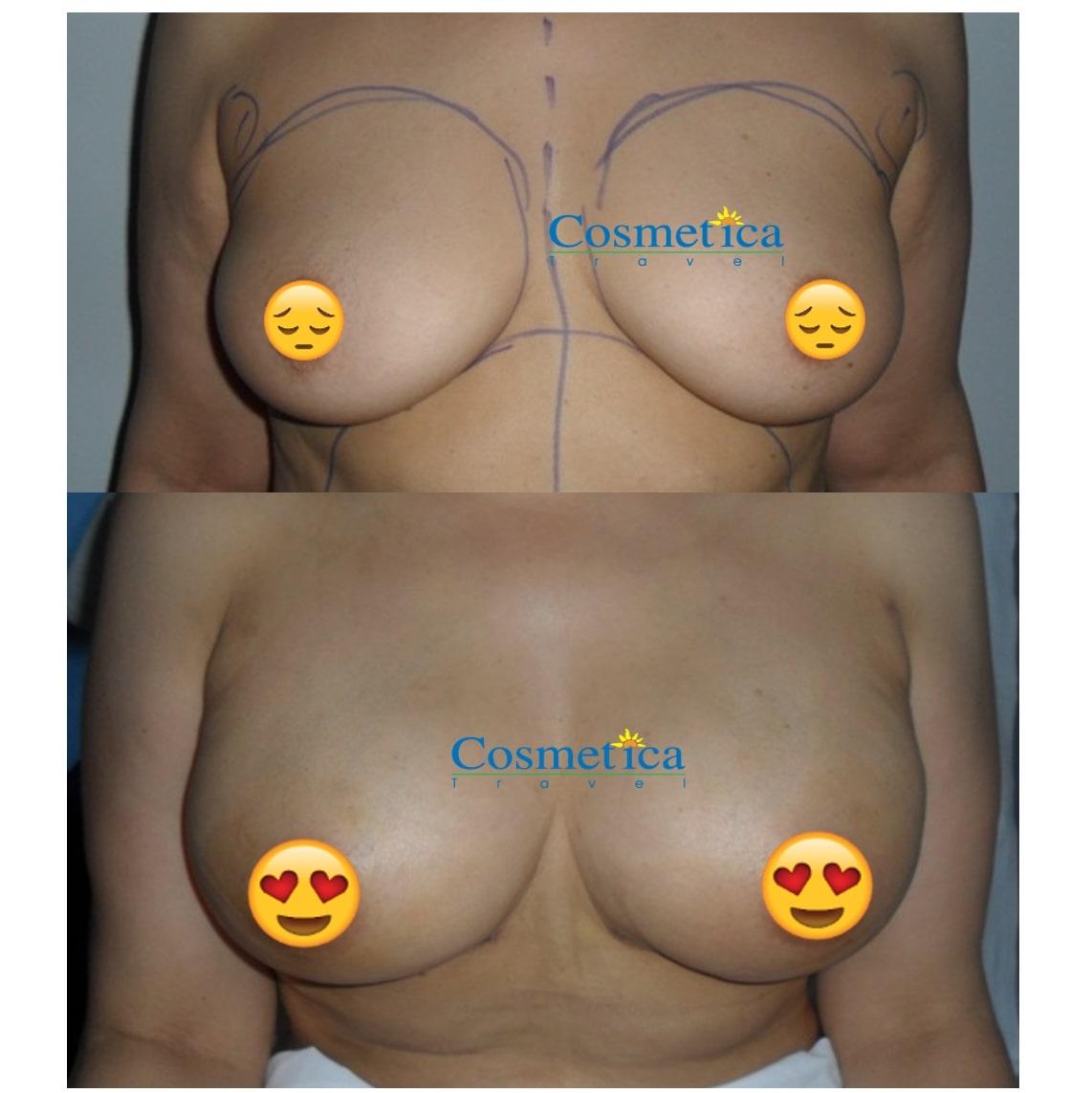 lipofilling seins avant apres