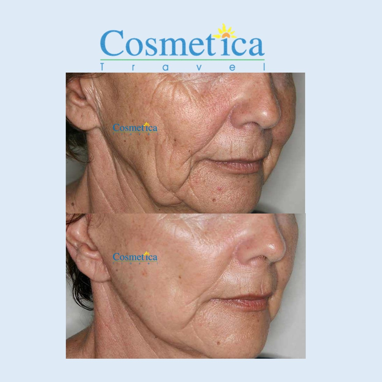 lifting cervico facial avant apres